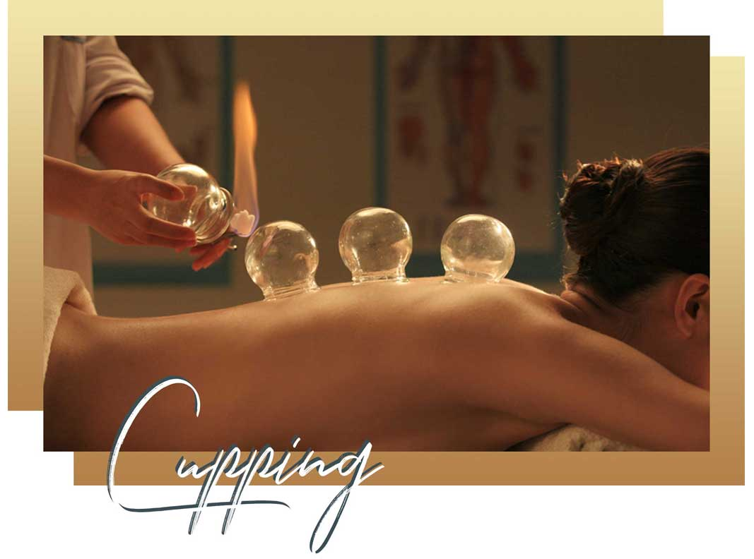 miami beach acupuncture | Cupping